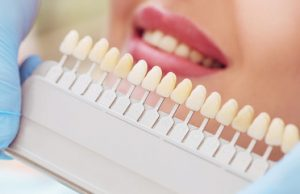 a tray of tooth colors being compared to a patient's smile