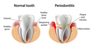 a comparison of a normal, healthy tooth versus a tooth affected by periodontal disease